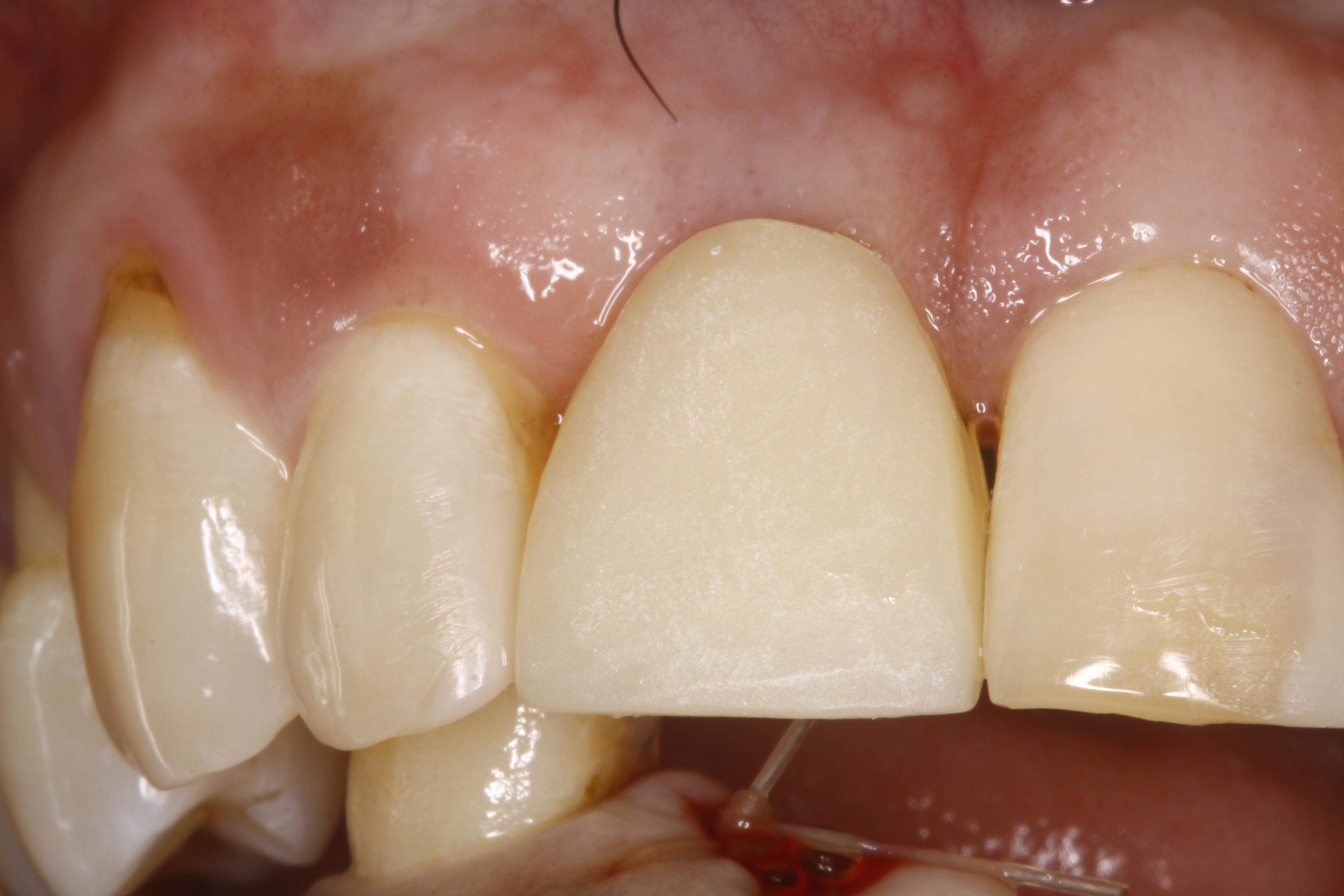 Cosmetic Dentistry Albany NY