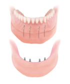 Mini-Dental Implants